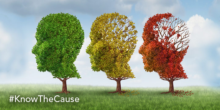 What Causes Alzheimers