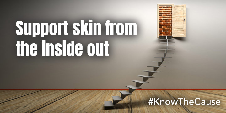 Support Skin from the Inside Out
